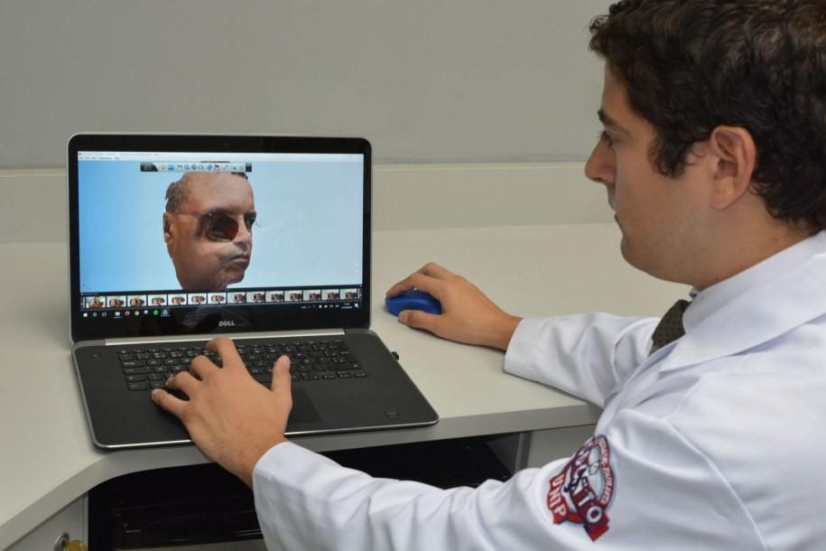Первому вмире человеку сделали протез лица при помощи 3D-печати