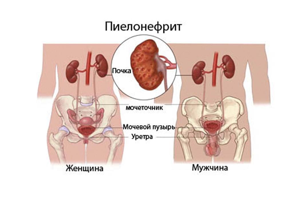 Простатит  лечение болезни Симптомы и профилактика