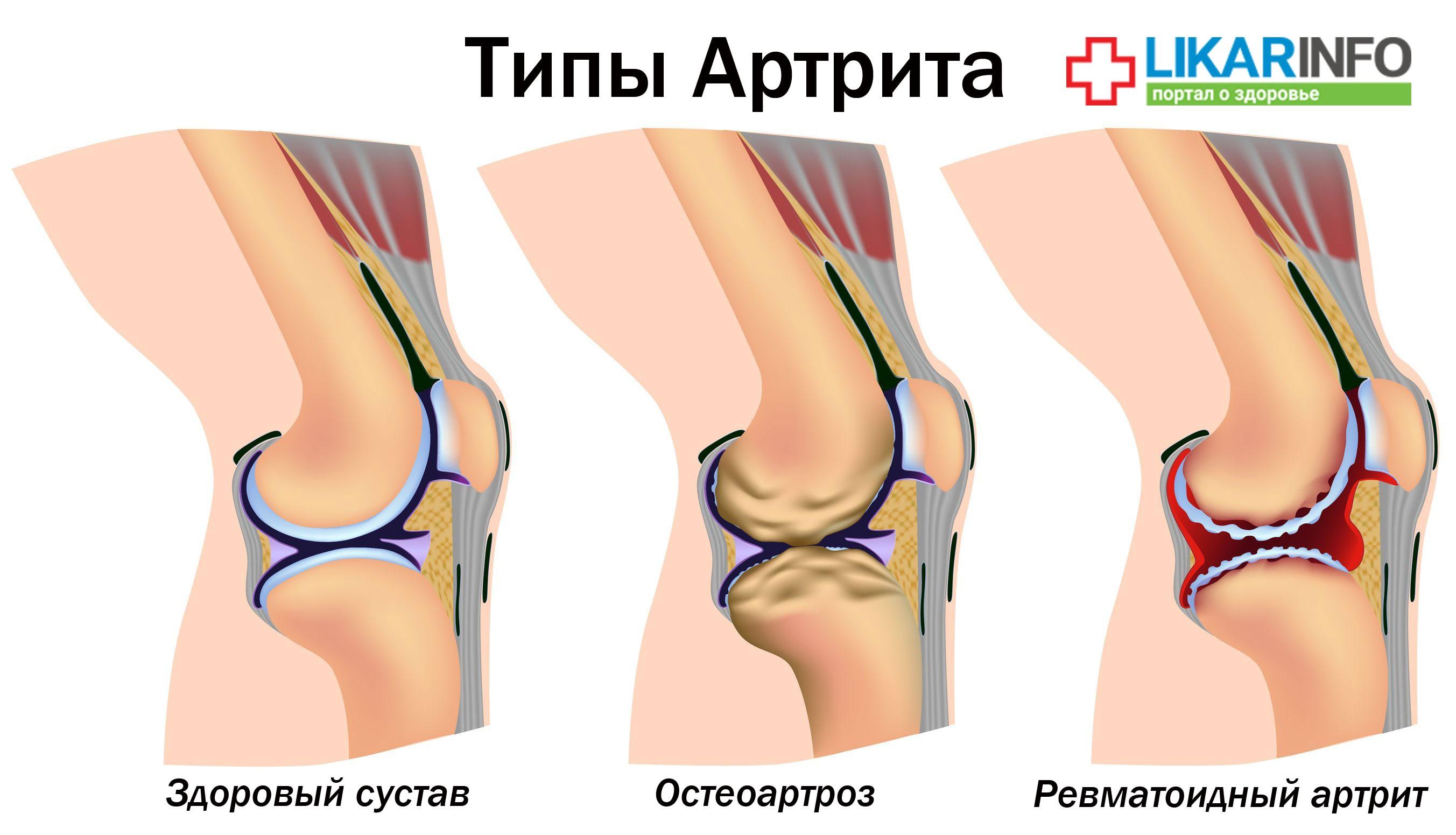 Виды артрита: ревматоидный артрит и остеоартроз