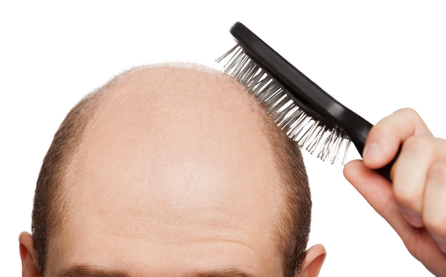 Маски для волос при облысении в домашних условиях