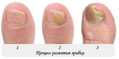 грибковые заболевания ногтей фото