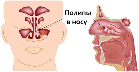 аллергия на прогестерон симптомы