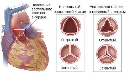 Аортальный стеноз - лечение болезни. Симптомы и профилактика ...
