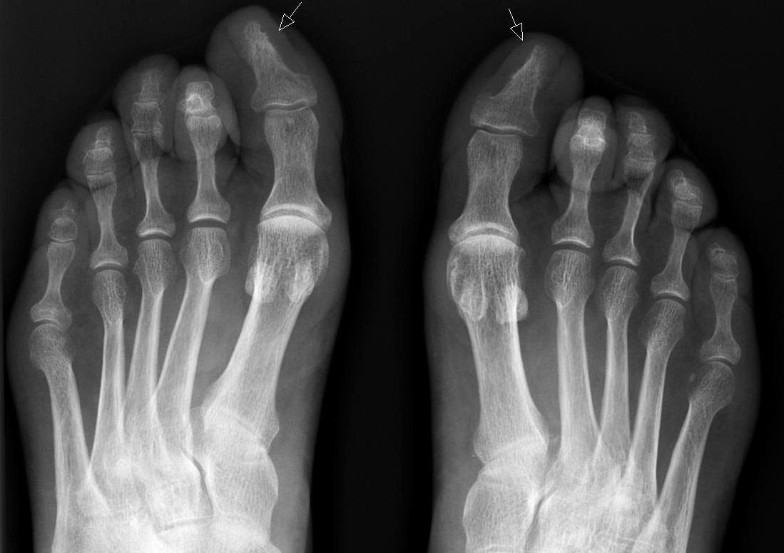 вросший ноготь диагностика фото