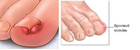 заболевания под ногтем картинка