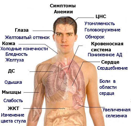 В12-дефицитная анемия фото