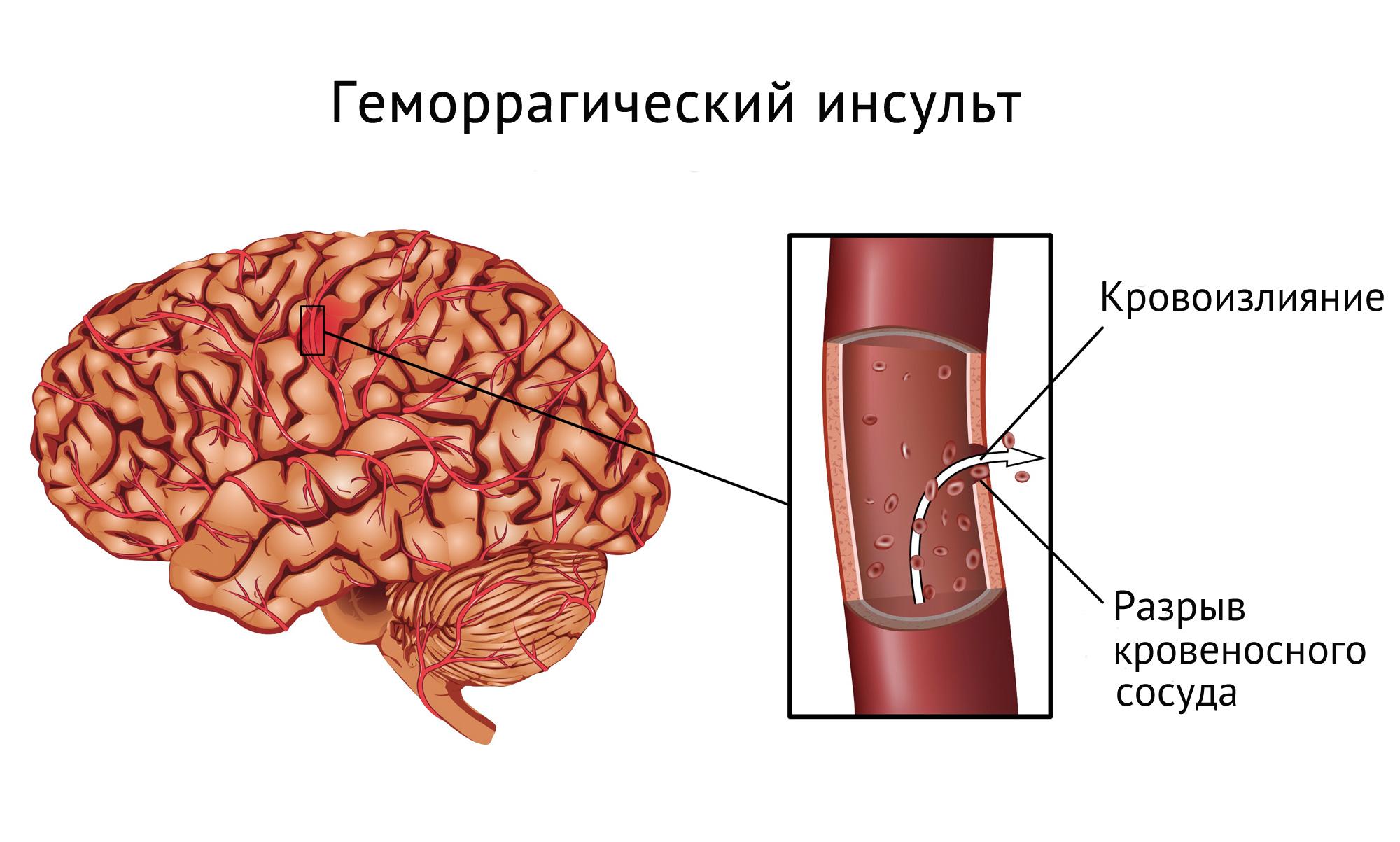 Кровоизлияние в мозг. Симптомы, причины и последствия заболевания