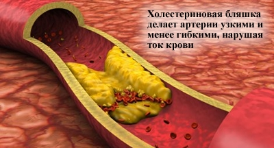статины диабетиков