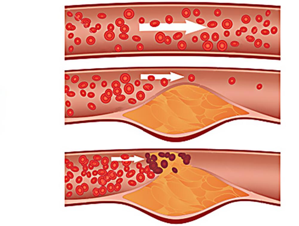 Как снизить холестерин народными средствами чеснок и лимон