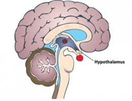 Гипоталамический синдром
