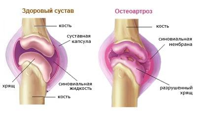 Деформирующий остеоартроз - лечение болезни. Симптомы и ...