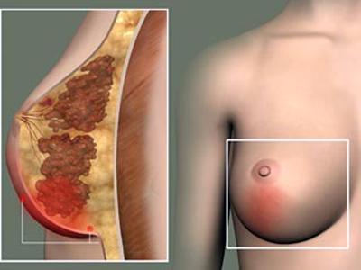 воспаление молочной железы симптомы