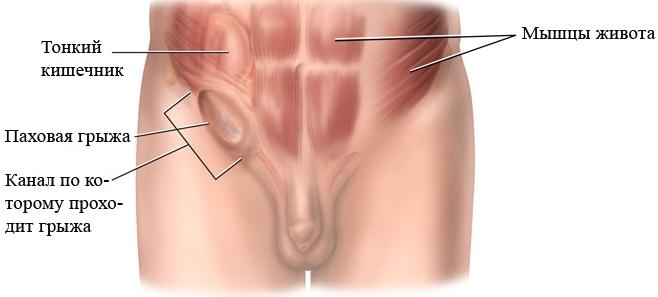 Народные методы лечения молочницы у женщин: рецепты