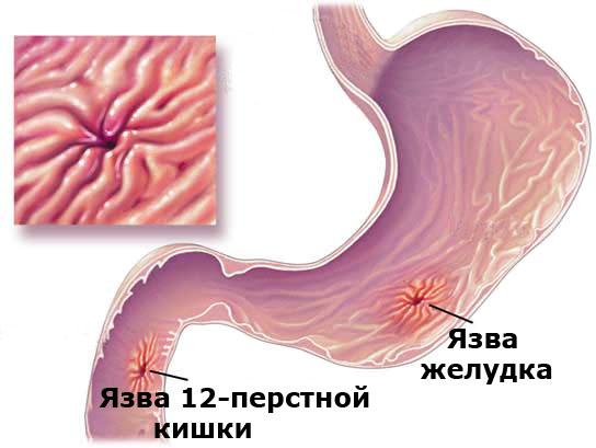 язва 12 перстной кишки фото