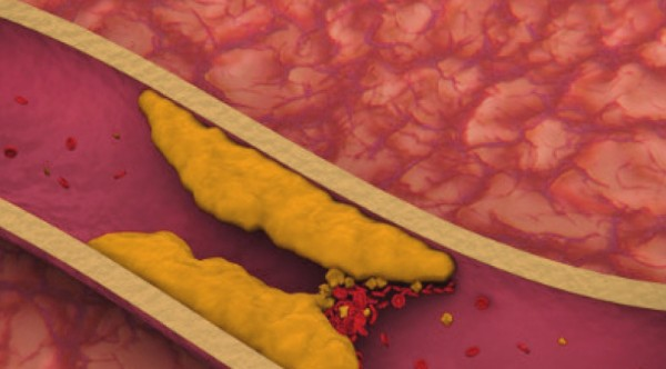 повышен холестерин форум