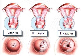 Умеренная дисплазия шейки матки - лечение болезни. Симптомы и ...