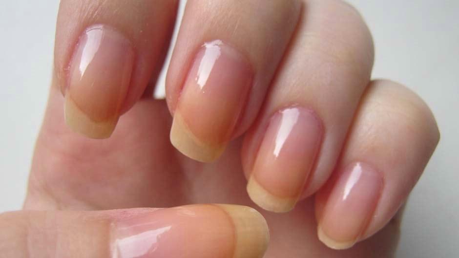 Самые эффективные средства от грибка ногтя от ногтевого грибка