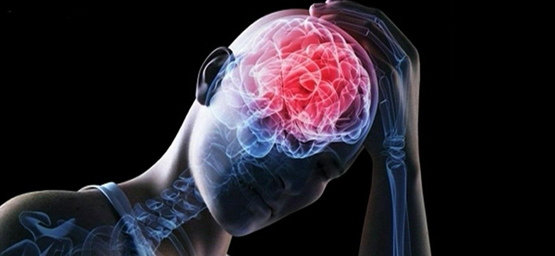 поражение нервной системы при третичном сифилисе