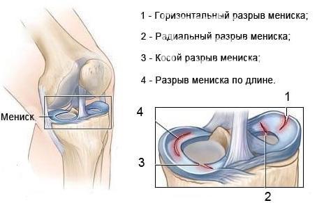 травмы мениска