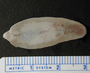 Fasciola hepatica - двуустка под микроскопом на фото