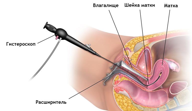Полипы у вагинального входа