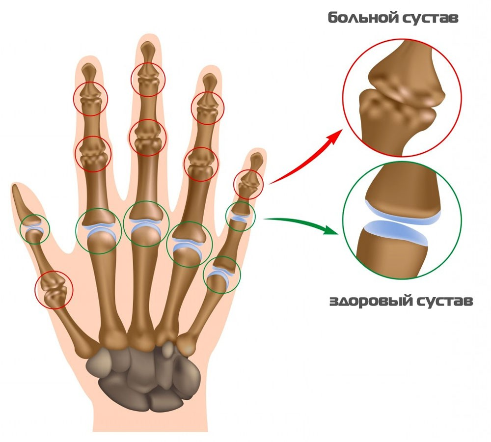 Аспирином кардио можно лечить воспаление суставов тренажер реабилитационный для разработки суставов kinetec breva ankle