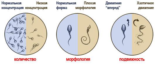morfologiya-normalnie-spermotozoydi