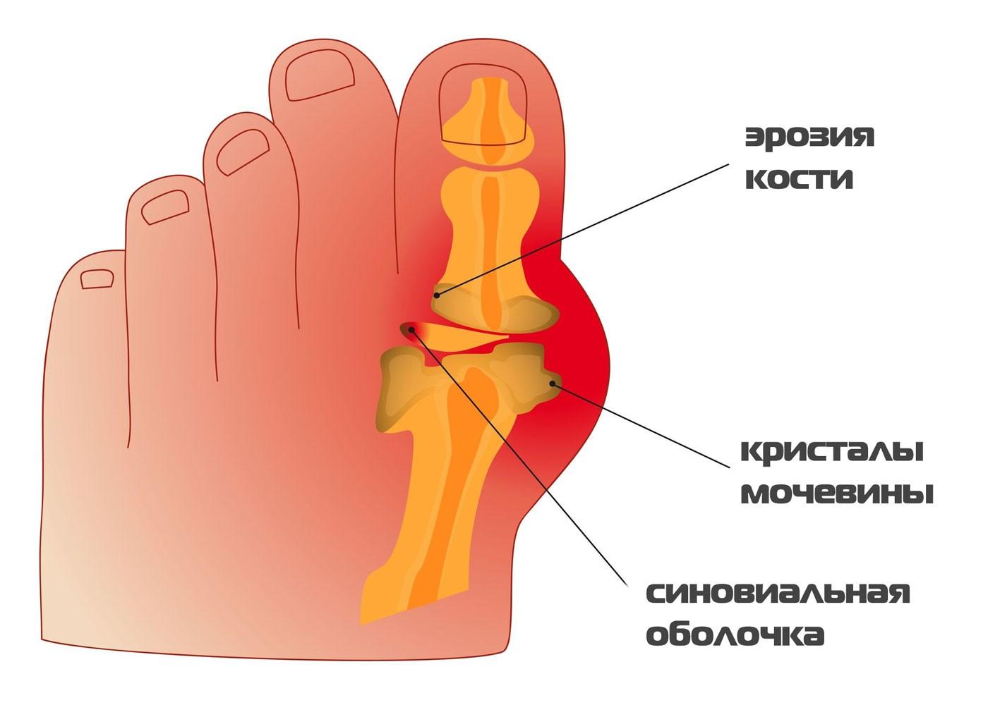 Артрит суставов с2-с7 таблетки от были в мышцах и суставах